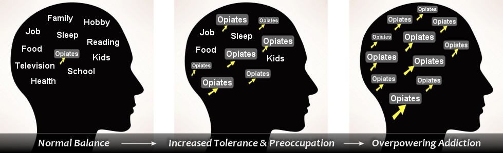 opiate addiction progression