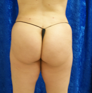 3-weeks-post-op-buttocks-after