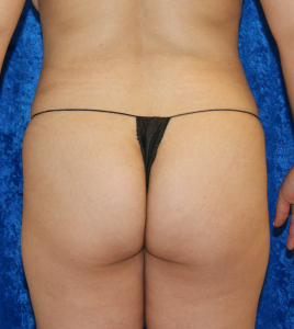 3-weeks-post-op-buttocks-before