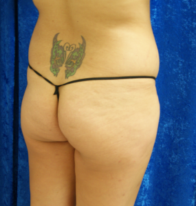 buttocks-butterfly-before